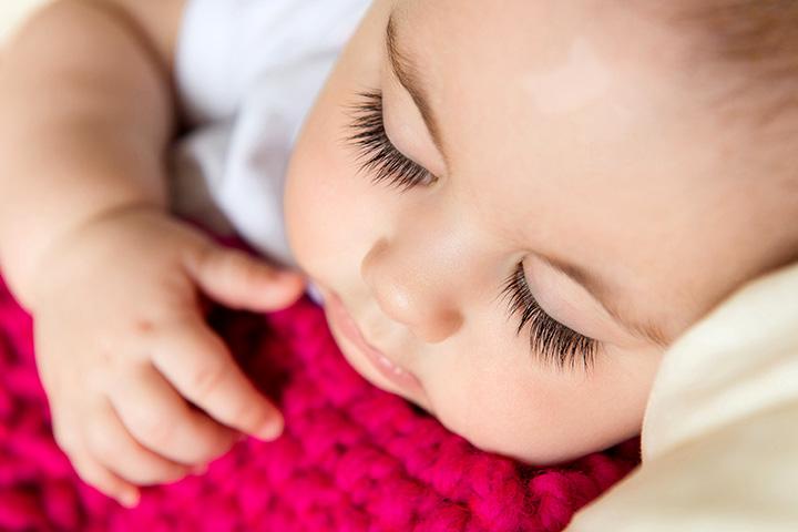 Vitiligine nei bambini: quello che devi sapere