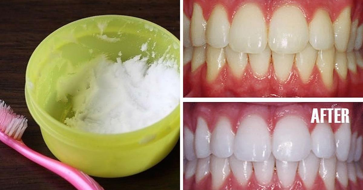 denti-bianchi-olio-di-cocco
